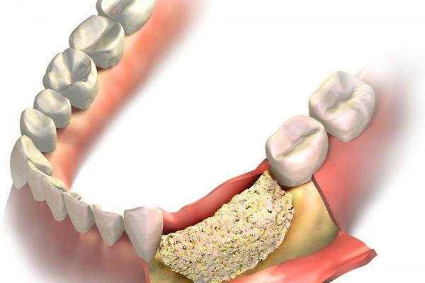 model of bone graft